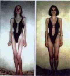 mujeres bulímicas