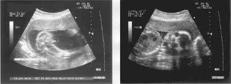 2 ecosonografías uterinas